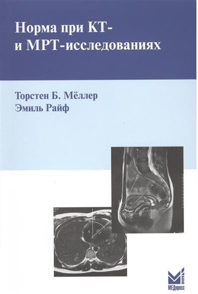 Норма при КТ- и МРТ-исследованиях