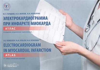 Электрокардиограмма при инфаркте миокарда. Атлас. = Electrocardiogram in Myocardial Infarction. Atlas