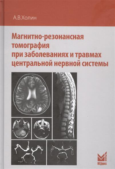 Магнитно-резонансная томография при заболеваниях и травмах центральной нервной системы
