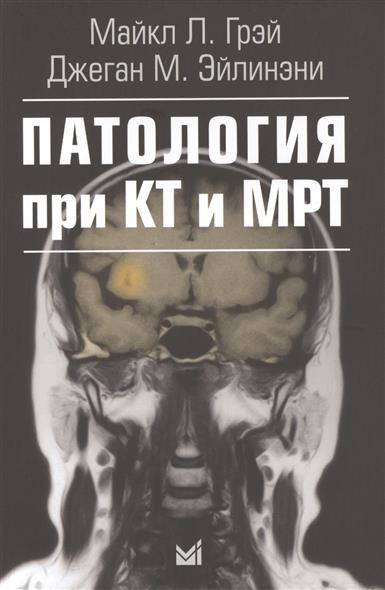 Паталогия при КТ и МРТ