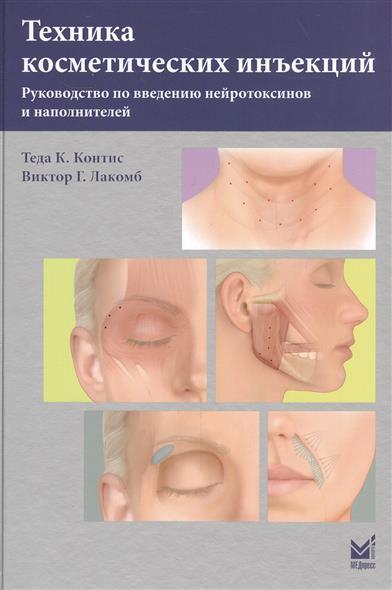 Техника косметических инъекций. Руководство по введению нейротоксинов и наполнителей