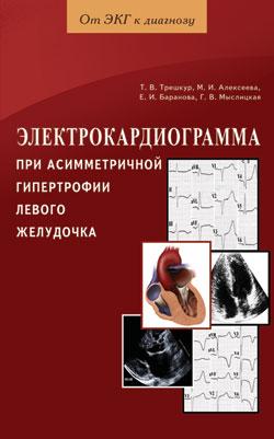 Электрокардиограмма при асимметр. гипертр. левого желудочка