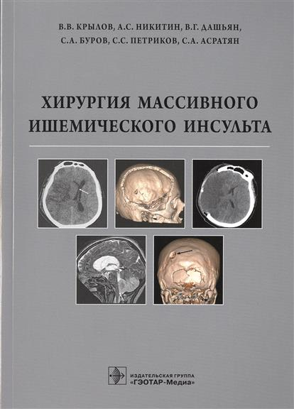 Хирургия массивного ишемического инсульта